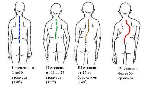 Hogyan lehet csökkenteni a lány vállát és hátát. Gyakoroljon otthon